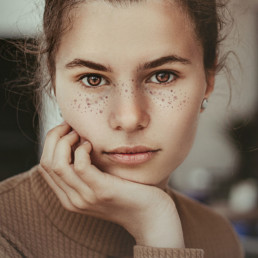 Protocolo acné juvenil